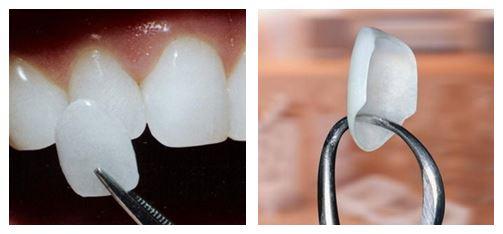 Dán răng sứ veneer 2