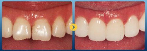 Răng sứ bị mẻ vỡ phải làm sao? 3
