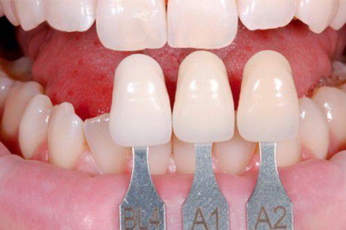 Răng sứ veneer là gì? 1
