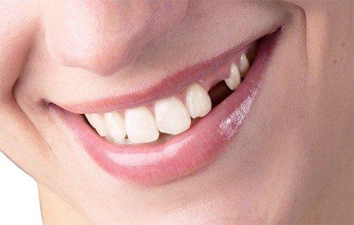 Trồng răng sứ vĩnh viễn 1