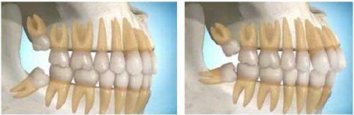 Răng khôn hàm dưới mọc lệch 2