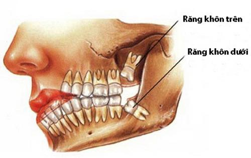 Răng khôn mọc ngầm 1