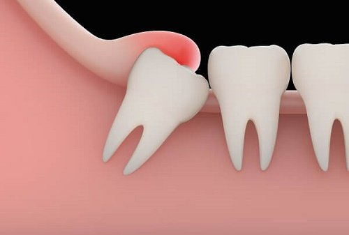 Răng khôn mọc ngầm 2