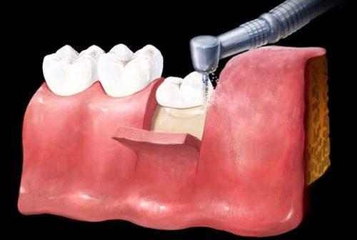 Răng khôn mọc ngầm 3