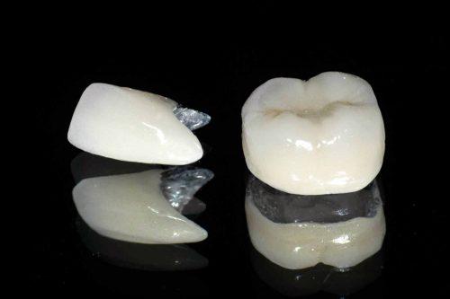Ưu và nhược điểm của các loại răng sứ 1
