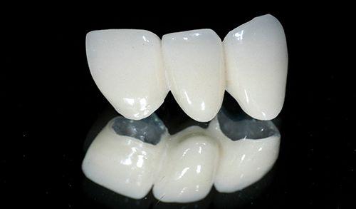 Bọc răng sứ được bao lâu? 2