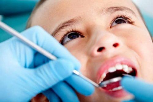 Chảy máu chân răng trẻ em 2