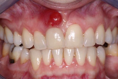 Truy lùng mẹo chữa viêm chân răng tại nhà hiệu quả 1