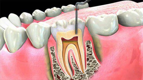 Cách điều trị viêm chân răng có mủ an toàn cho bạn 3