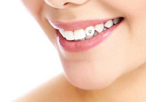Thẩm mỹ đính đá vào răng ở đâu là an toàn? 2