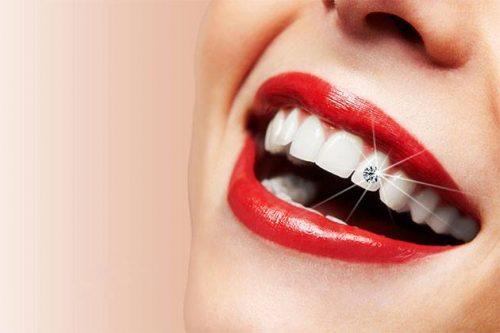 Hiện nay giá đính đá lên răng là bao nhiêu? 1