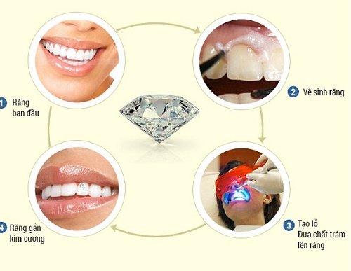 Hiện nay giá đính đá lên răng là bao nhiêu? 3