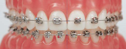 Dịch vụ niềng răng mắc cài inox cho mọi người 1