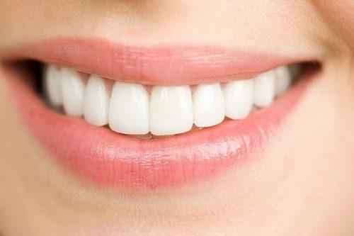 Dịch vụ niềng răng mắc cài inox cho mọi người 2