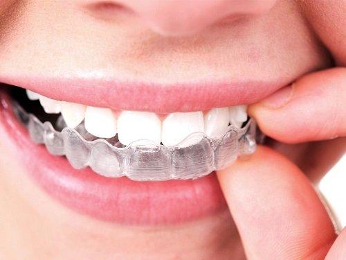Dịch vụ niềng răng tháo lắp là gì?2