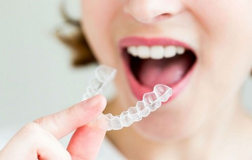 Dịch vụ niềng răng tháo lắp là gì?3