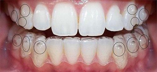 Niềng răng tháo lắp có hiệu quả không? 2
