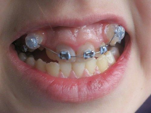 Niềng răng một hàm có được không? 1