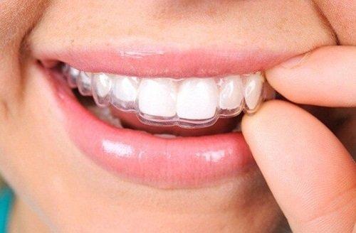 Niềng răng một hàm có được không? 2