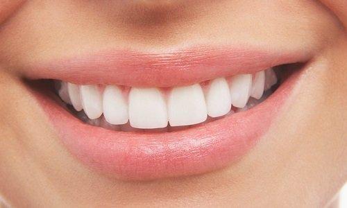 Niềng răng một hàm có được không? 3
