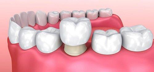 Bọc răng sứ có bền không ? 3 vấn đề cần biết khi bọc răng sứ 1