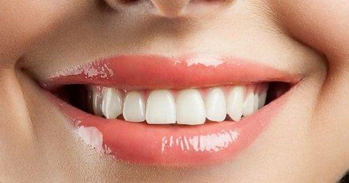 Bọc răng sứ có bền không ? 3 vấn đề cần biết khi bọc răng sứ 2