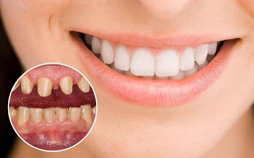 Bọc răng sứ có tác hại gì không? Làm gì để thực hiện an toàn? 2