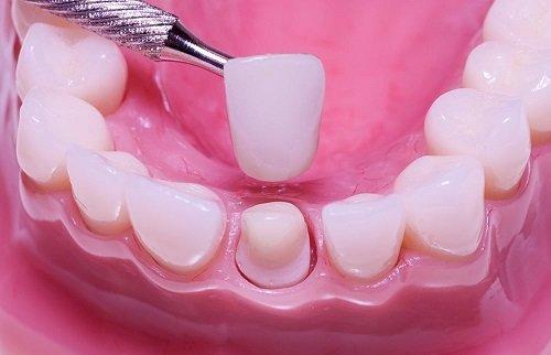 Bọc răng sứ duy trì được bao lâu? 1