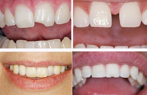 Bọc răng sứ duy trì được bao lâu? 2