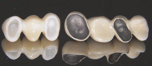 Bọc răng sứ kim loại thường giúp khôi phục răng 1