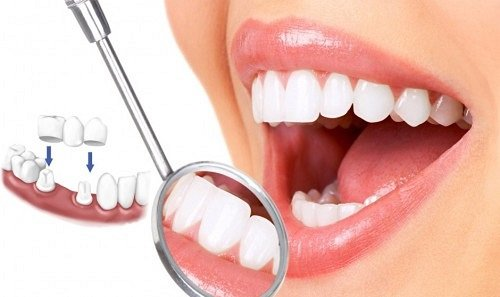 Bọc răng sứ kim loại thường giúp khôi phục răng 2