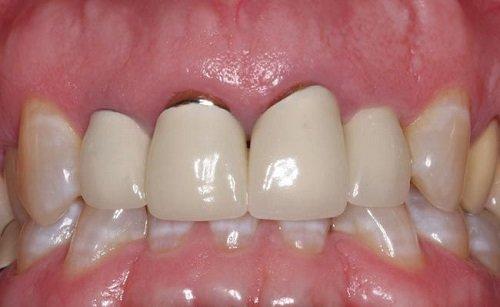 Bọc răng sứ kim loại thường giúp khôi phục răng 4