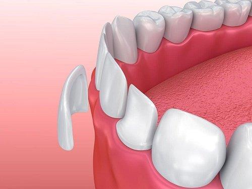 Bọc răng sứ nguyên hàm đảm bảo thẩm mỹ nụ cười 1