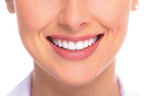 Giúp bạn nhận biết bọc răng sứ ở đâu đẹp 1