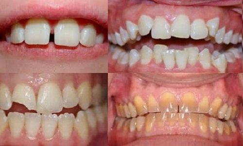 Bọc răng sứ titan có tốt không với răng sứt mẻ? 1
