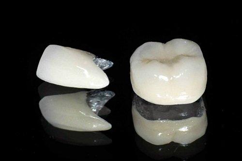 Bọc răng sứ titan có tốt không với răng sứt mẻ? 3