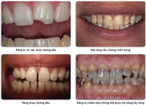 Các trường hợp nên áp dụng bọc răng sứ veneer 2