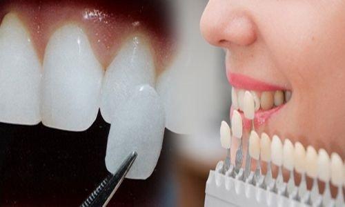 Các trường hợp nên áp dụng bọc răng sứ veneer 4