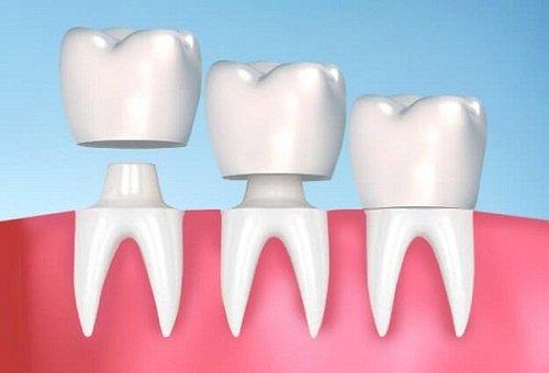 Bọc răng sứ zirconia - Ưu điểm và hạn chế 2