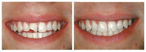 Tìm hiểu bọc sứ răng cửa giá bao nhiêu tại địa chỉ uy tín 1