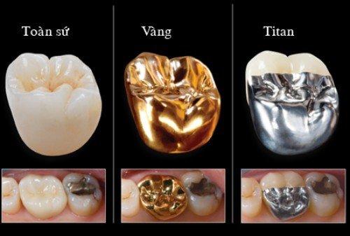 Tìm hiểu bọc sứ răng cửa giá bao nhiêu tại địa chỉ uy tín 3