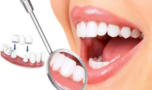 Chụp răng sứ giá bao nhiêu tiền là hợp lý nhất đây? 2