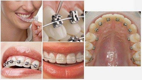 Niềng 2 răng cửa giá bao nhiêu thì được nhất? 2