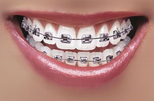 Niềng 2 răng cửa giá bao nhiêu thì được nhất? 3