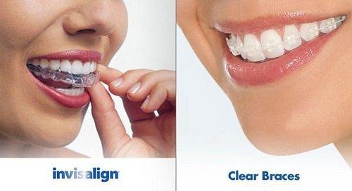 Niềng răng bằng nhựa đảm bảo thẩm mỹ 2