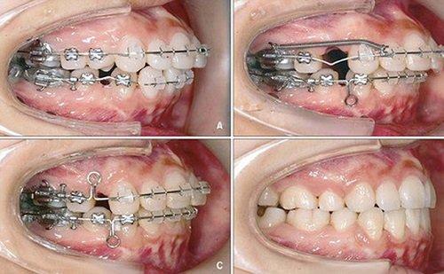 Giải đáp giúp tôi niềng răng hô có cần nhổ răng không 3