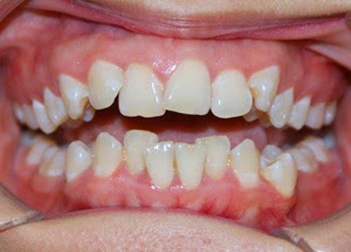 Niềng răng invisalign có tốt không? 1
