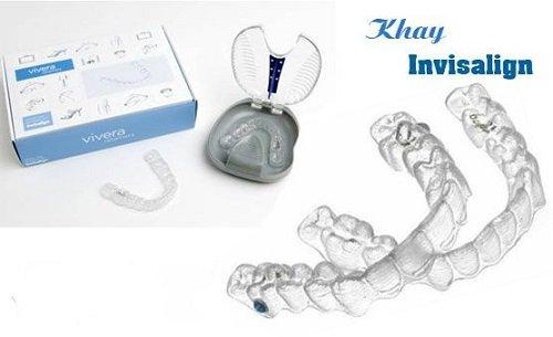 Niềng răng invisalign có tốt không? 3
