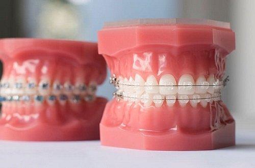 Niềng răng mắc cài sứ tự buộc có thực sự tốt? 1