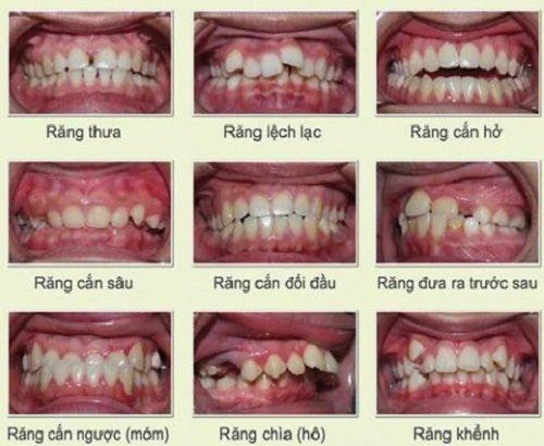 Niềng răng mắc cài sứ tự buộc có thực sự tốt? 2